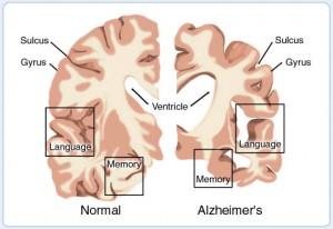 """Alzheimer brain"""