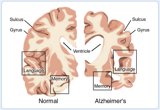 alzheimer s disease memo Alzheimer's is a a type of dementia it is a serious and common neurological disease that involves a buildup of plaque and tangles in the brain.