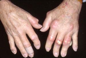 """""""Gouty arthritis"""""""