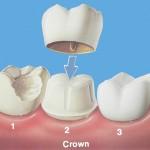 placing crown