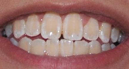 Do You Brush Teeth Before Whitening  Whitening Teeth