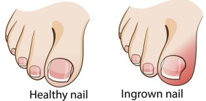 ingrown and healthy toenail