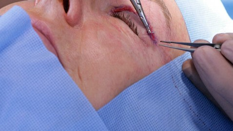 eyelid surgery is the 2nd most popular surgery