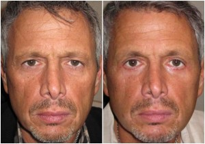 before-after picture blepharoplasty