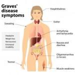 grave's disease symptoms